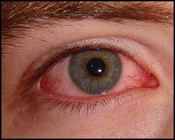 Конъюнктивальный мешок - Современная офтальмология