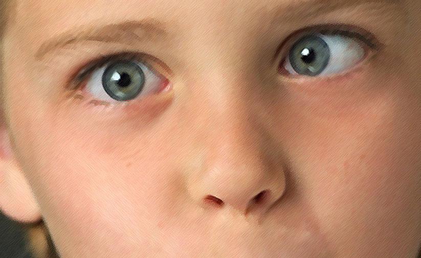 после окклюзии стали косить оба глаза выбор